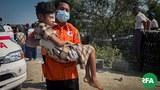 maungdaw-injured-622.jpg