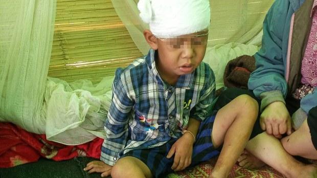 injured-child-kayah.jpg