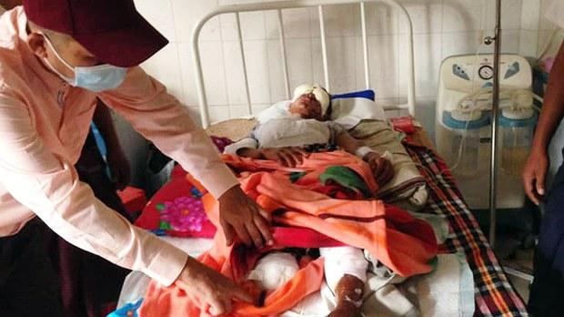 မိုင်းကြောင့် ဒဏ်ရာရခဲ့တဲ့ ကျောက်တော်ဒေသခံ အမျိုးသမီး သေဆုံး