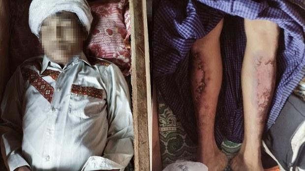 ကလေးမြို့ခံတစ်ဦး အဖမ်းခံရပြီးနောက် စစ်ကြောရေးမှာ သေဆုံး