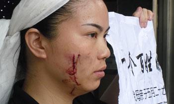 死者的女儿周四(6月9日)被打伤,脸上有明显的伤痕。(欧忠勇 提供)