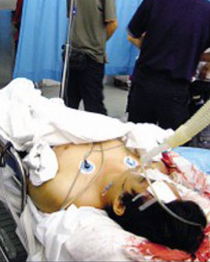 劉堯舉報全國政協、深圳富商繆壽良在2007年6月指使二十多名保安毆打罷工工人,導致雷民忠被打死。(照片由劉堯提供)