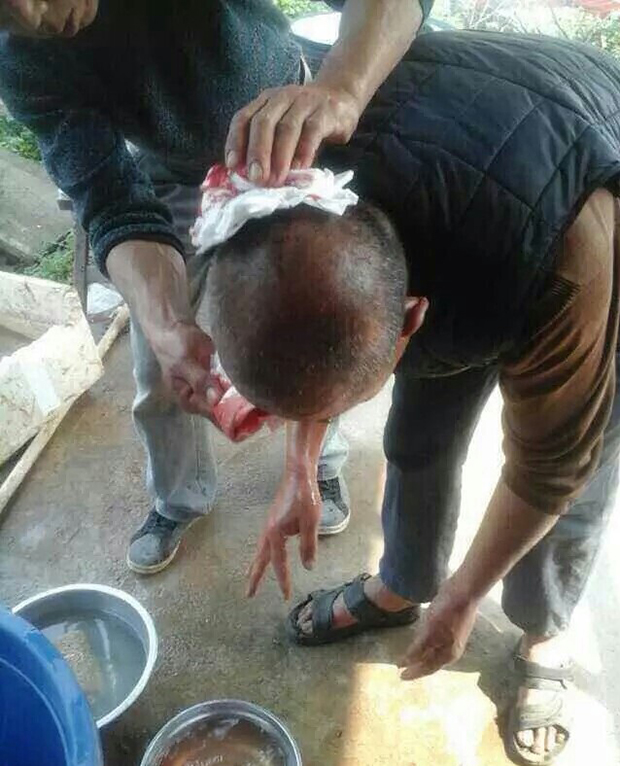 2015年3月18日,角美镇社头村近200名村民因不满征地赔偿金过低,阻止政府在土地施工,被现场警察打伤。(相片由目击者提供)