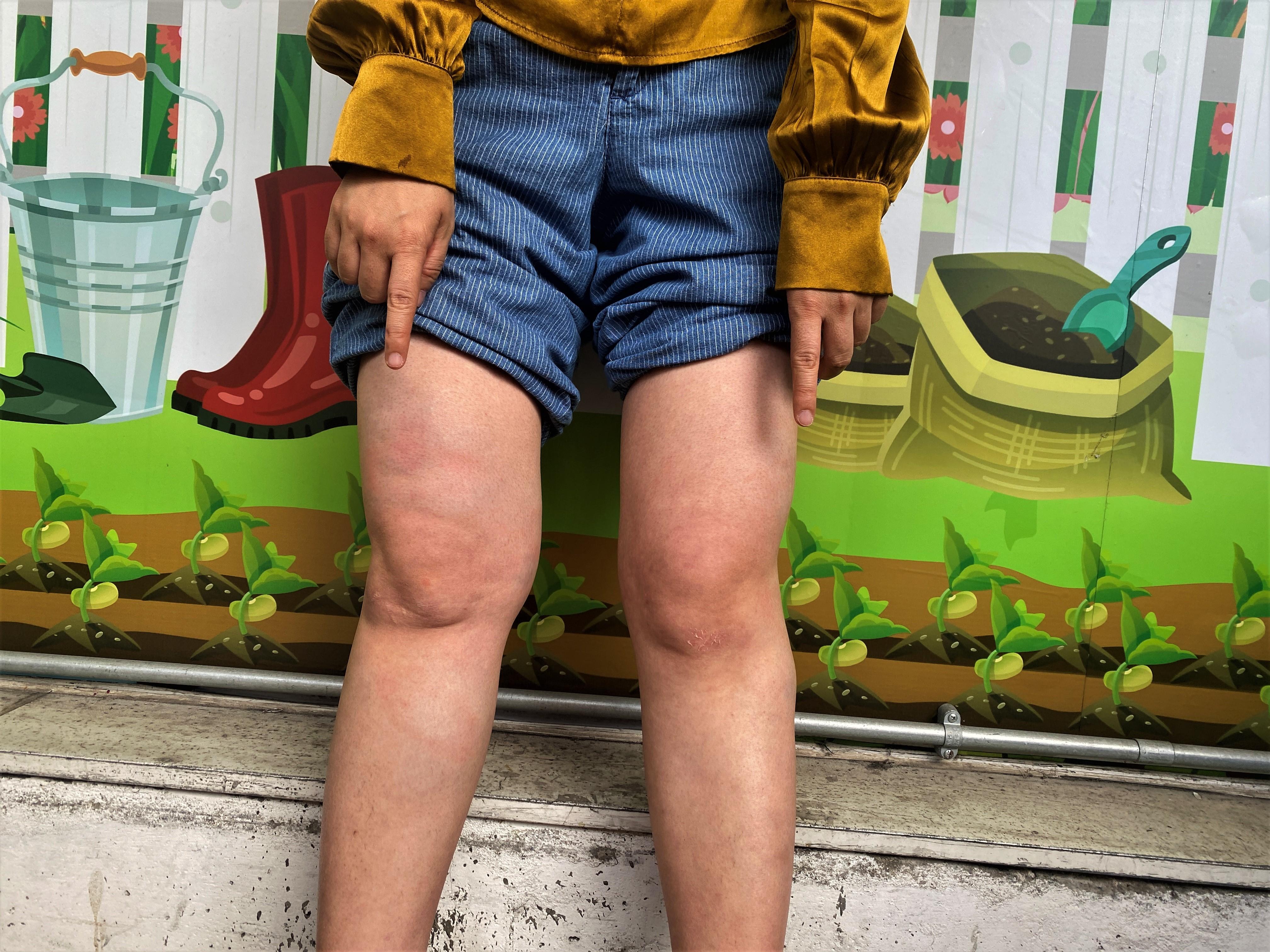 梁珍雙腿多處紅腫和瘀傷。(李智智 攝)
