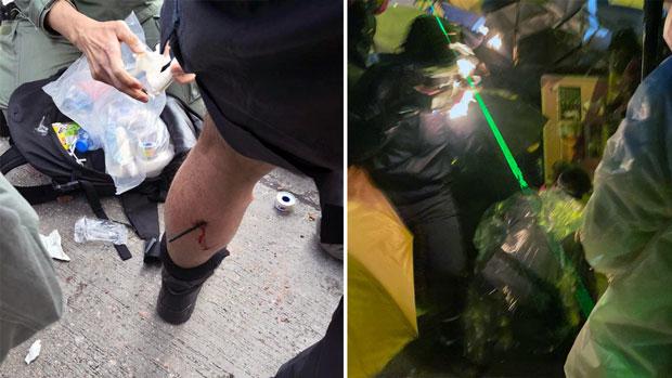 2019年11月17日,(左圖)香港警方表示一名警察傳媒聯絡隊隊員,在衝突期間被箭射中小腿。(右圖)有示威者遭燒傷。(香港警察/李智智攝)