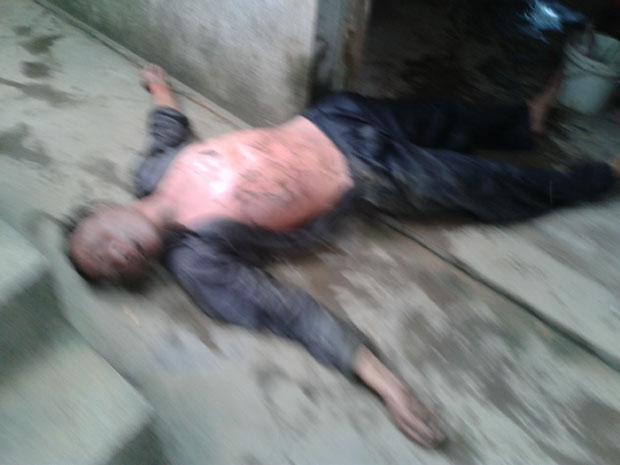 2013年5月29日,广西博白县石柳村村民张平自焚抗议拆迁,身体被严重烧伤。(村民提供)