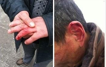 河北刑台巿南水北調工程廿多名民工,1月15日到巿政公司追討欠薪時,數人被打傷。(照片由農民工提供)