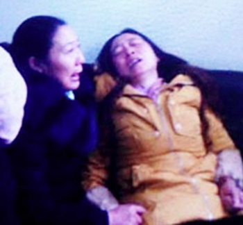 四川雅安巿姚橋鎮土橋村村民張素蓉,2014年12月16日就安置房問題在村書記辦公室割腕未遂。(照片來自中國天網)
