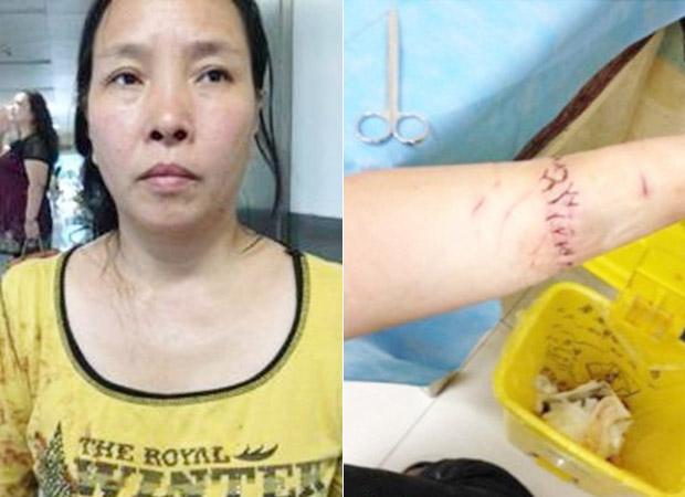 2014年9月9日,湖北襄阳拆迁户张亚男,中秋节与9名访民在北京天安门下跪被警方扣查。她被截访人员强行押上车后,用刀片割腕反抗。(照片来自中国天网)