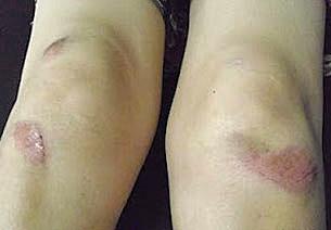 遭拖行的孙洪琴,她双腿亦伤痕累累。(相片由孙洪琴提供)