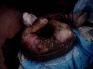 5月28日,警方把丹增西熱遺體歸還家屬。(照片由維權人士提供)