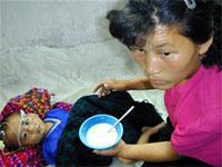 malnourishedNK-200.jpg