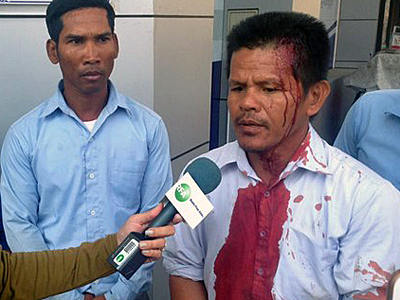 A former Capitol Tours bus driver who was beaten during a protest talks to reporters in Phnom Penh, Feb. 6, 2016. Credit: RFA