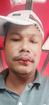 Prak Seiha in a photo after being bludgeoned with a rock by unknown assailant in Phnom Penh, Feb. 16, 2021. Facebook
