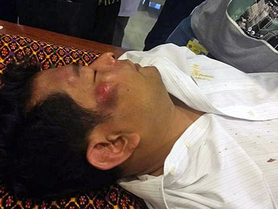Cambodian lawmaker Nhay Chamreoun receives treatment for his injuries in Phnom Penh, Oct. 26, 2015. Credit: RFA