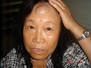 Huuchinhuu displays a contusion on her forehead, July 20, 2011.