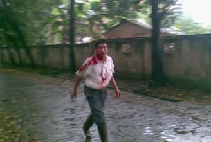 Villager beaten in the Yingde township clash, May 23, 2009. Photo provided by local villager