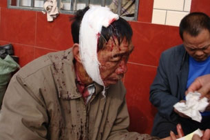 A villager nurses his wounds after police clashed with protesters in Guanzhou, Jan. 19, 2010. Credit: Tongle villager Zhang
