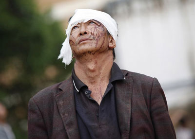 An injured earthquake survivor weeps in Yunnan's Ludian county, Aug. 4, 2014. Credit: AFP