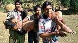 myanmar-wounded-rohingya-child-buthidaung-rakhine-dec7-2020.jpg