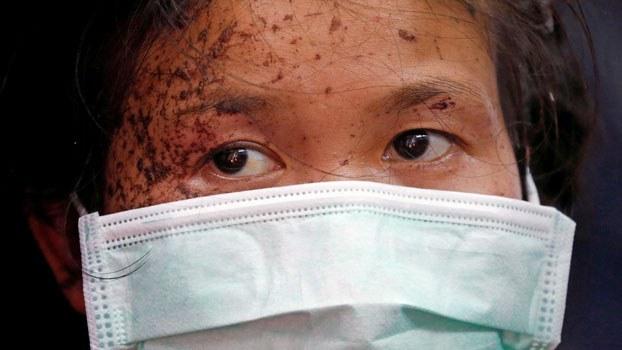 myanmar-wounded-person-flees-kayin-thailand-mar30-2021.jpg