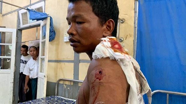 myanmar-injured-villager-kyauk-tan-rakhine-may-2019.jpg