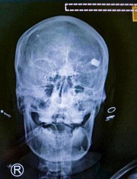 myanmar-xray-skull-shot-protester-naypyidaw-feb9-2021.jpg