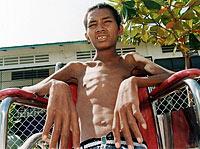 CambodiaAIDS200.jpg