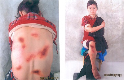 Uyghur petitioner Anargul Yusup took photos of her bruises after she was beaten by police on May 11, 2012. Credit: RFA.