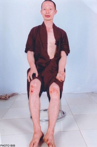 Thich Quang Thanh shortly after being beaten by police on June 10, 2012. Photo courtesy of Vietnam Committe on Human Rights.