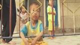 malnutrition_nk_children_305