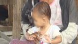 f-malnutrition