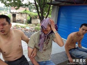 图片:农民工被打致血流披面。(天涯社区)