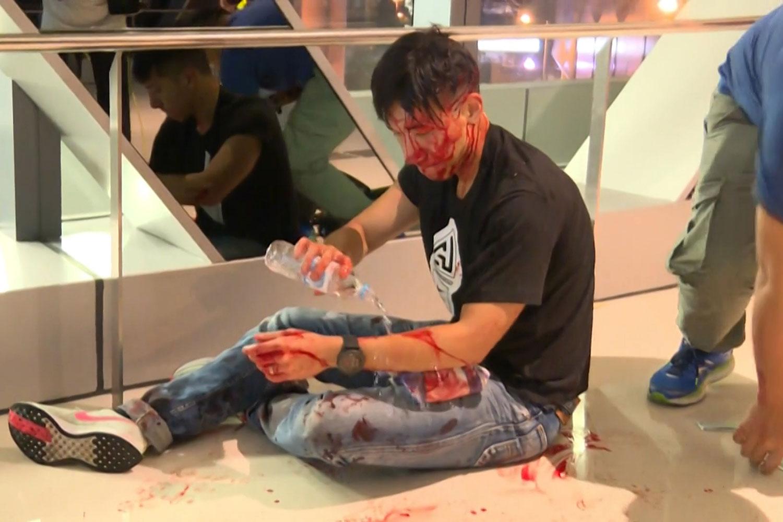 2019年7月21日,在元朗地铁站,大批身穿白衣人士殴打市民记者。其中身穿黑衫的资深传媒人,前无线电视新闻主播柳俊江,被白衣人殴打受伤,血流满面。(法新社)