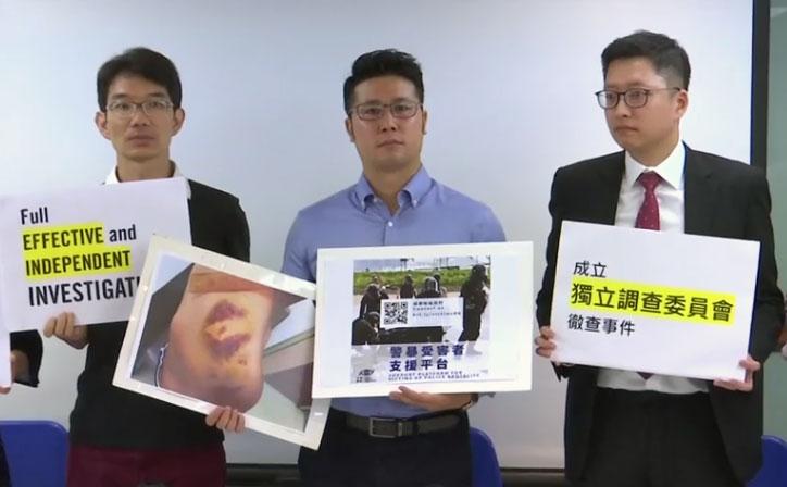 2019年6月24日,民权观察并且邀请国际特赦组织香港分会的代表召开记者会,图为香港民权观察,国际特赦组织香港分会代表,展示6-12警方清场行动中受伤的示威者伤势照片。(视频截图/路透社)