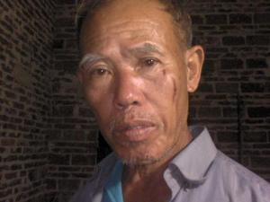 图片:受伤村民(志愿者)