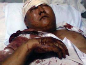 图片:其中一位商户被打得血流披面,躺在医院治疗。(商户及志愿者提供)