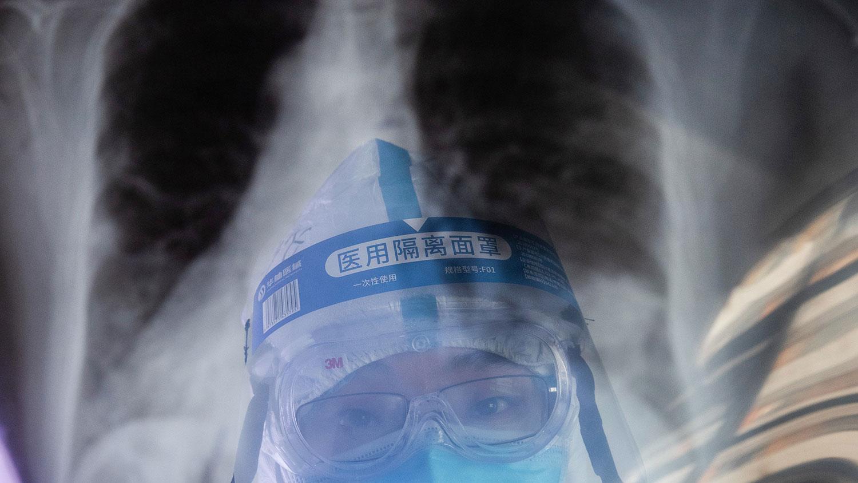 武汉肺炎的潜伏期目前仍然是一个谜,贸然让没有感染症状的人出城,会承受很大风险。(法新社)