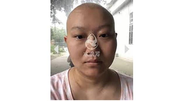 李丹患病后的照片(photo:RFA)