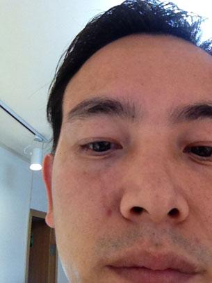 图片:深圳家庭教会传道人曹楠脸部被抓伤的情景。(关爱中心提供/首发)