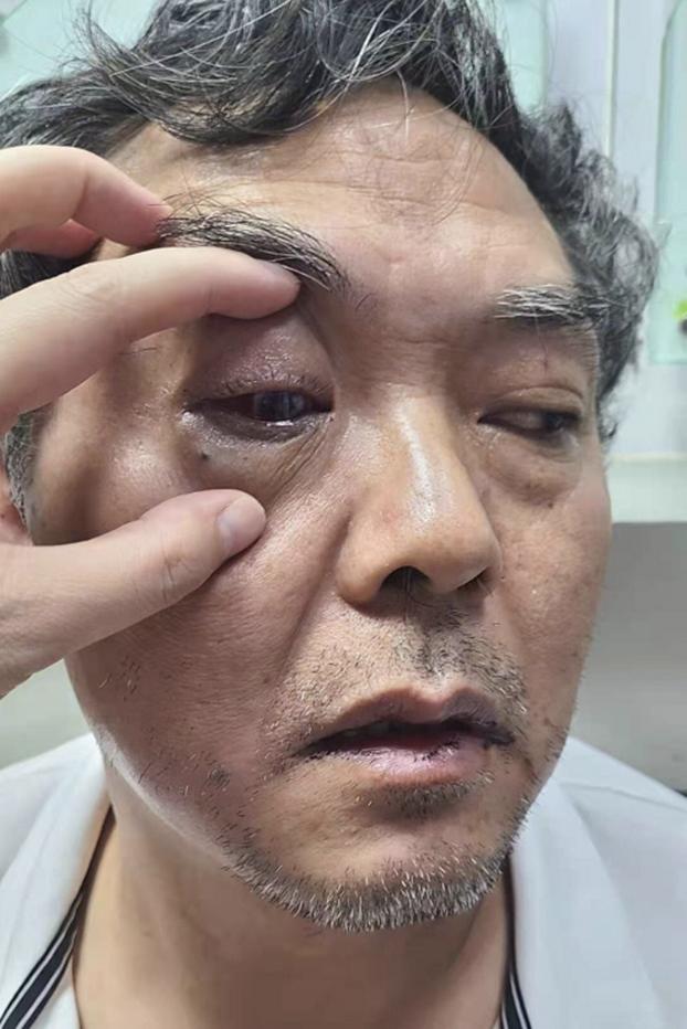維權律師陳科雲遇襲。(維權網)