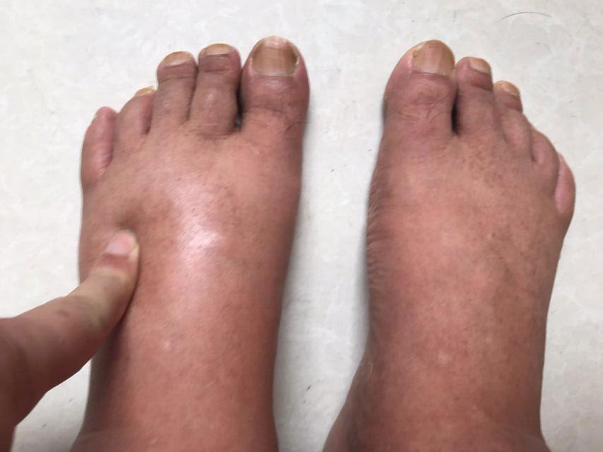 律师江天勇本月起双脚出现严重水肿。(金变玲提供,拍摄日期不详)