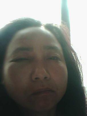 图片:浙江访民沈志华右眼被打肿。(维权人士提供)