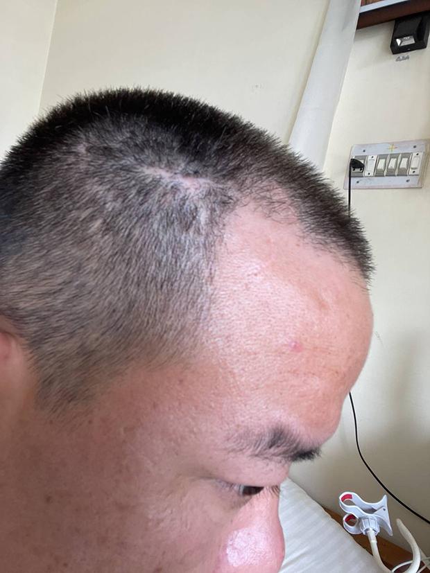 次仁达瓦在被关押期间头部受伤,目前头部有一条疤痕。(次仁达瓦提供,独家首发)