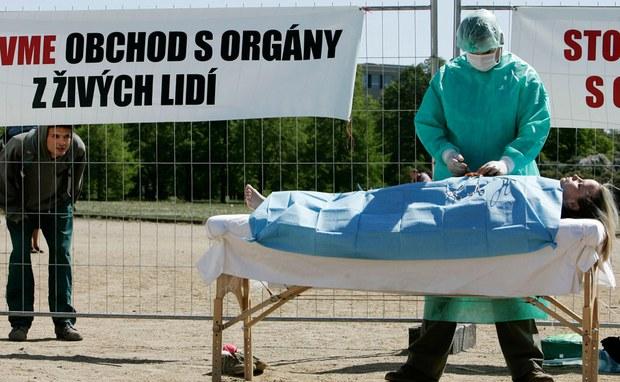 organ-ichki-eza-sodisi-2.jpg