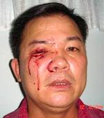 Mục sư Nguyễn Công Chính, hình chụp sau khi bị công an đánh đập hôm 12-7-2008.  Photo courtesy of VPEF