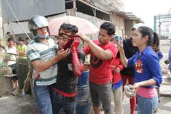 Công nhân tham gia biểu tình ở ngoại ô Phnom Penh bị cảnh sát bắn trúng đầu sáng ngày 3/1/2014. RFA PHOTO/Quốc Việt.