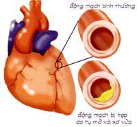 HeartTim200.jpg