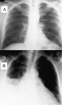 PneumoniaViemphoi200.jpg