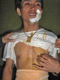 Sinh viên Vũ Hoàng Quang sau khi được thả về. Ảnh do nạn nhân cung cấp